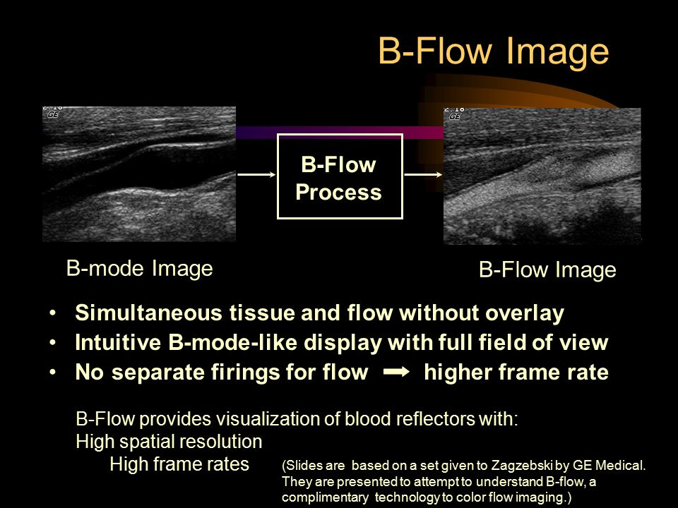 B-Flow Image Simultaneous tissue and flow without overlay Intuitive B-mode-like display with full field of view No separate firings for flow higher fr
