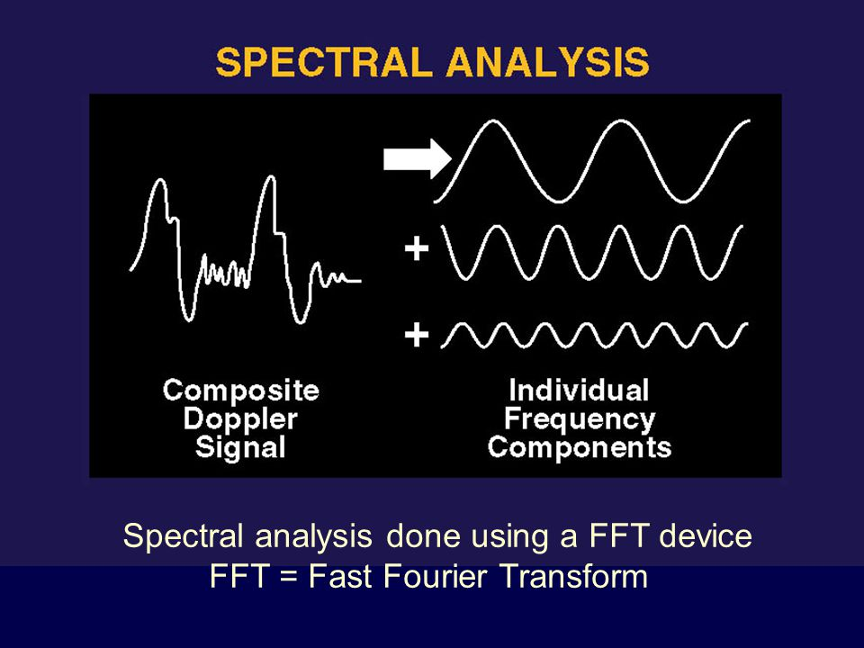 Spectral analysis done using a FFT device FFT = Fast Fourier Transform