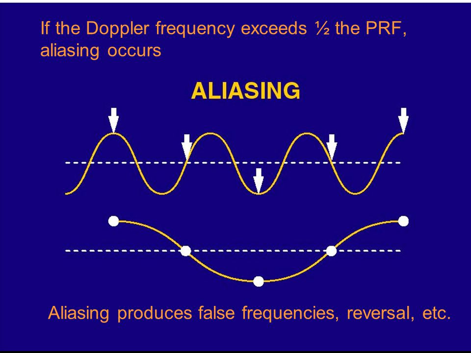 If the Doppler frequency exceeds ½ the PRF, aliasing occurs Aliasing produces false frequencies, reversal, etc.