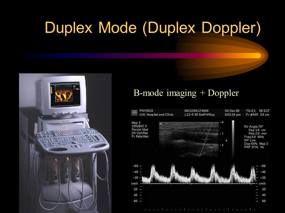 Duplex Mode (Duplex Doppler) B-mode imaging + Doppler