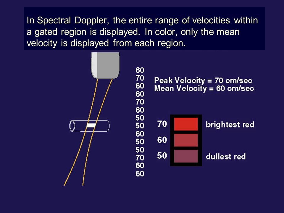 In Spectral Doppler, the entire range of velocities within a gated region is displayed. In color, only the mean velocity is displayed from each region