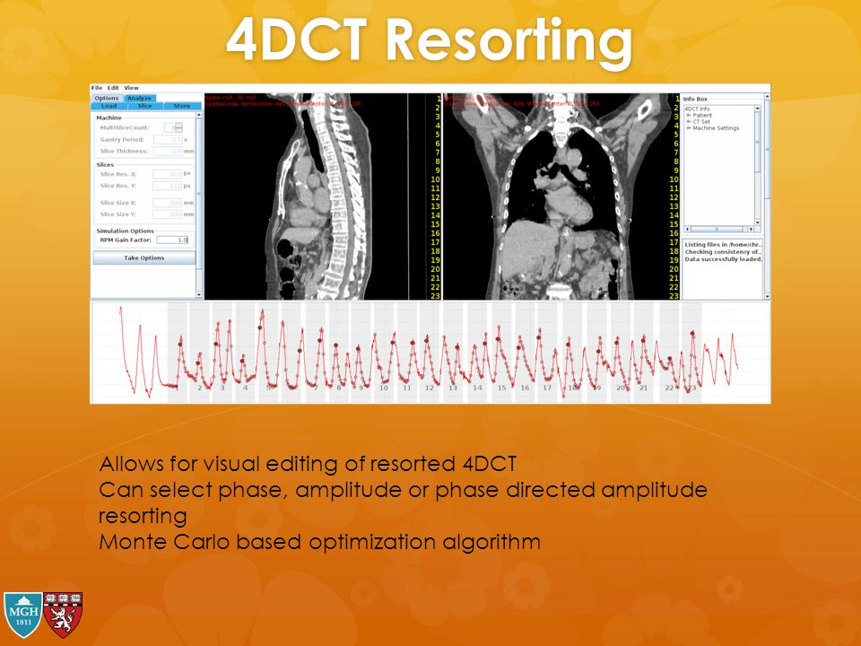 4DCT Resorting Allows for visual editing of resorted 4DCT Can select phase, amplitude or phase directed amplitude resorting Monte Carlo based optimiza