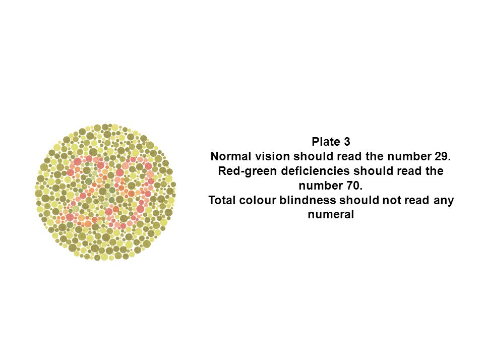 Plate 3 Normal vision should read the number 29. Red-green deficiencies should read the number 70. Total colour blindness should not read any numeral