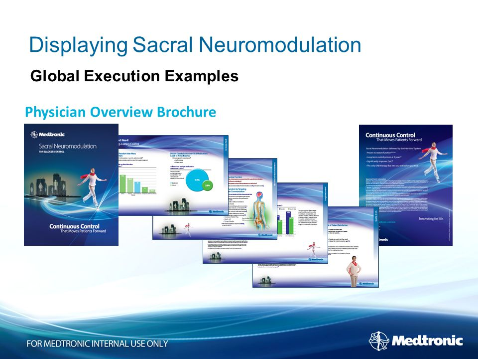 Physician Overview Brochure Displaying Sacral Neuromodulation Global Execution Examples