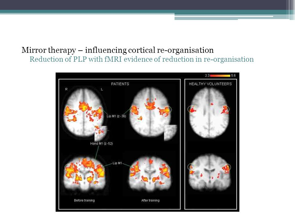 Mirror therapy – influencing cortical re-organisation Reduction of PLP with fMRI evidence of reduction in re-organisation