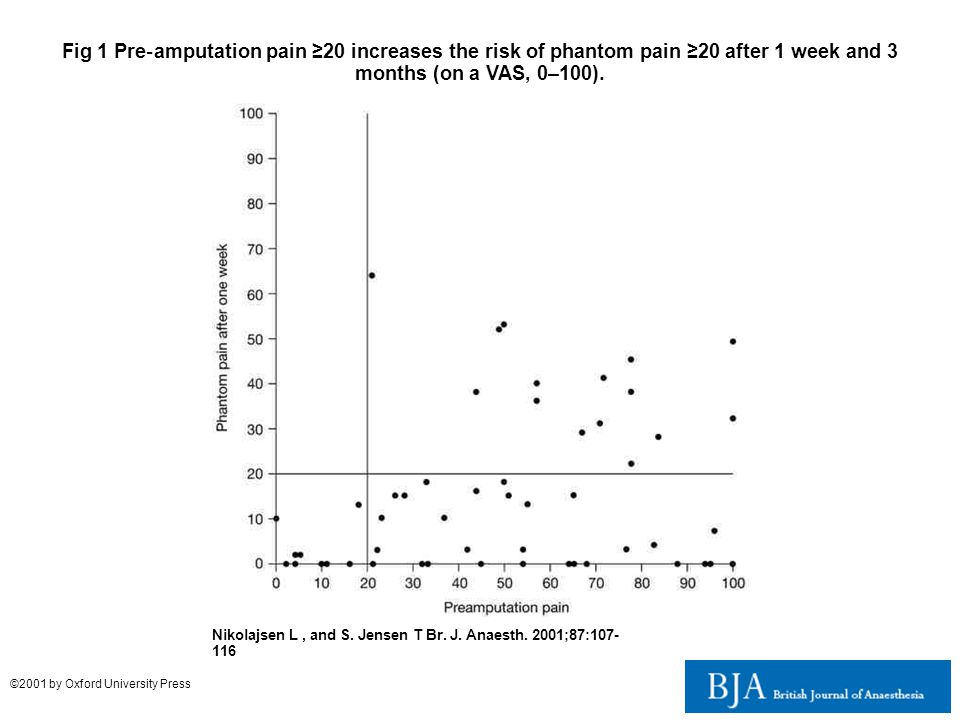 Fig 1 Pre ‐ amputation pain ≥20 increases the risk of phantom pain ≥20 after 1 week and 3 months (on a VAS, 0–100). Nikolajsen L, and S. Jensen T Br.