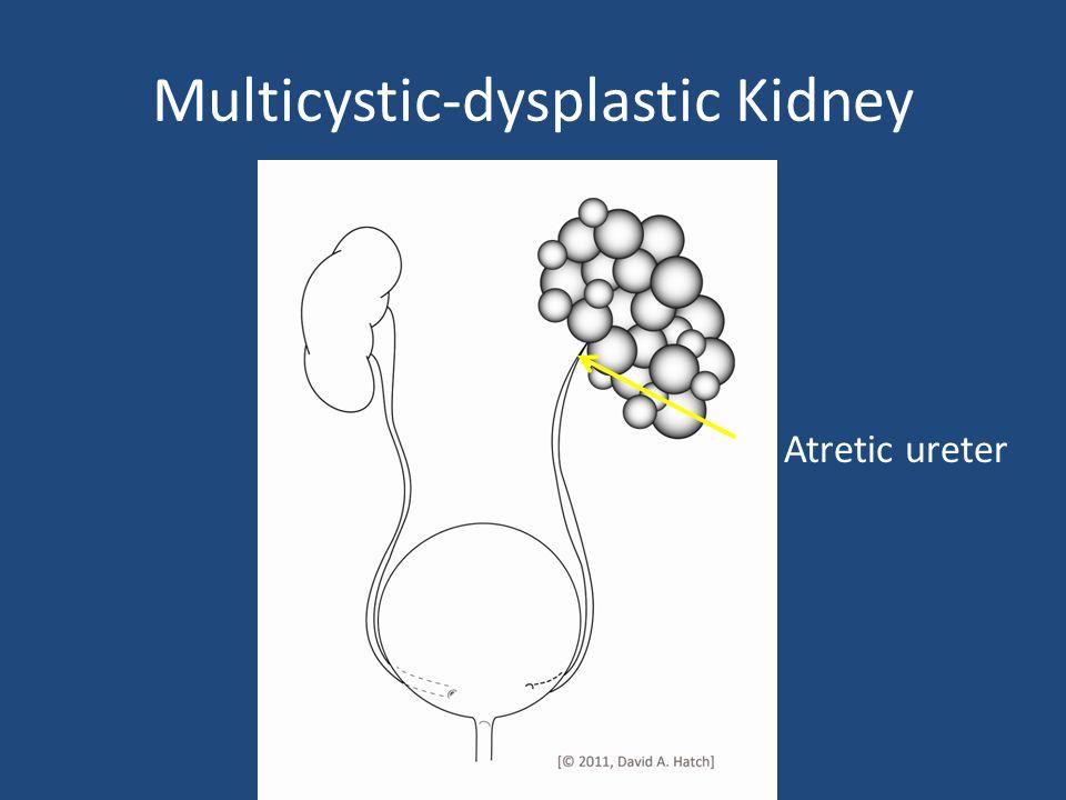 Atretic ureter Multicystic-dysplastic Kidney