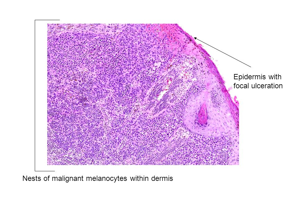 Epidermis with focal ulceration Nests of malignant melanocytes within dermis