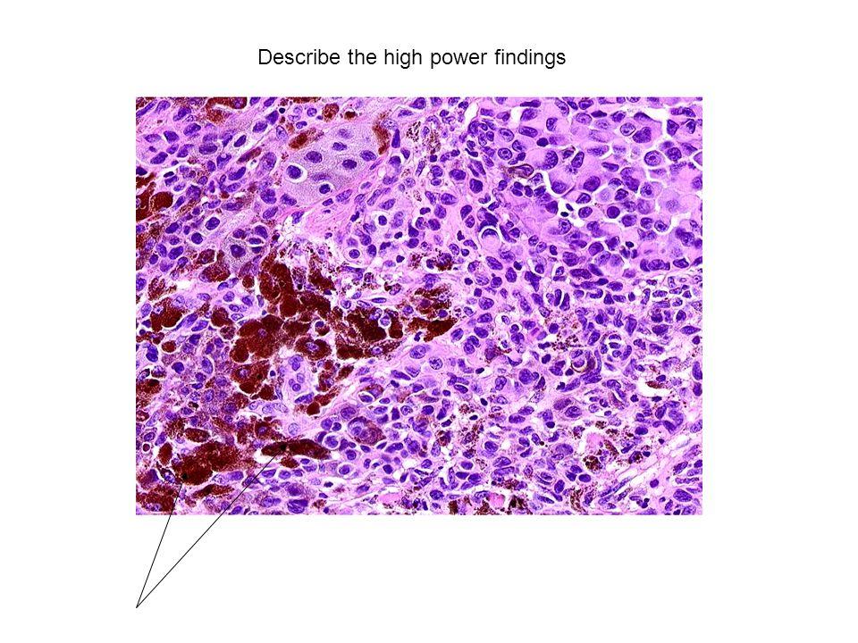 Describe the high power findings