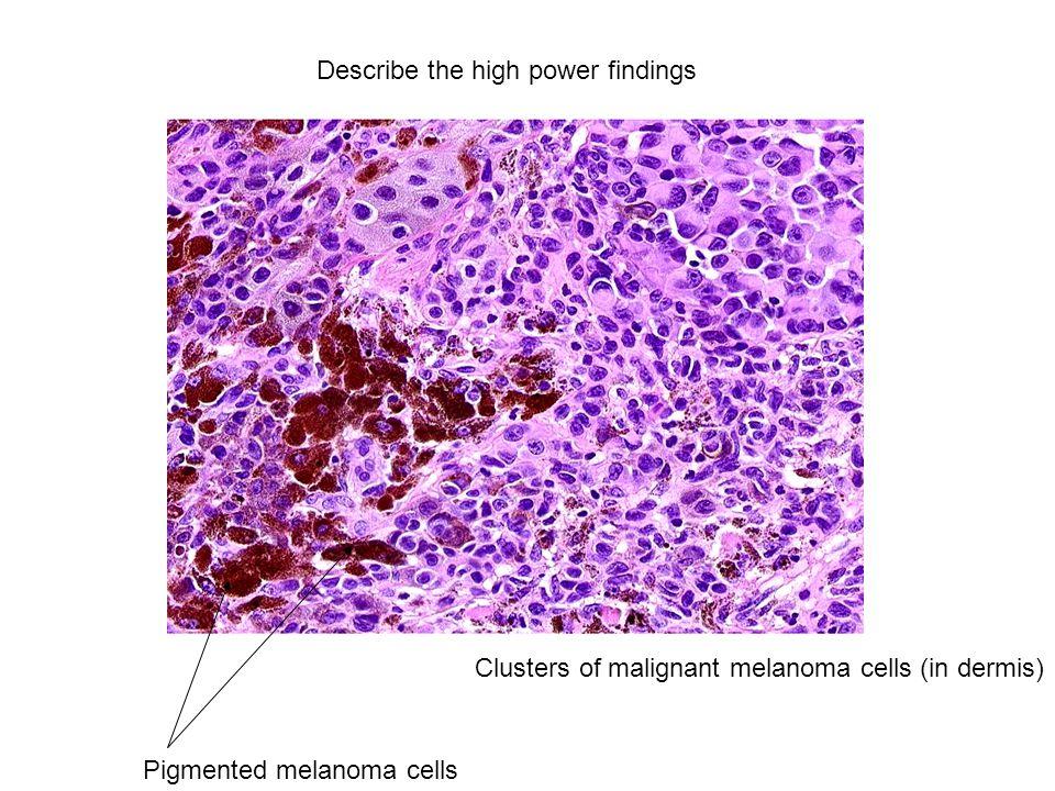 Clusters of malignant melanoma cells (in dermis) Pigmented melanoma cells