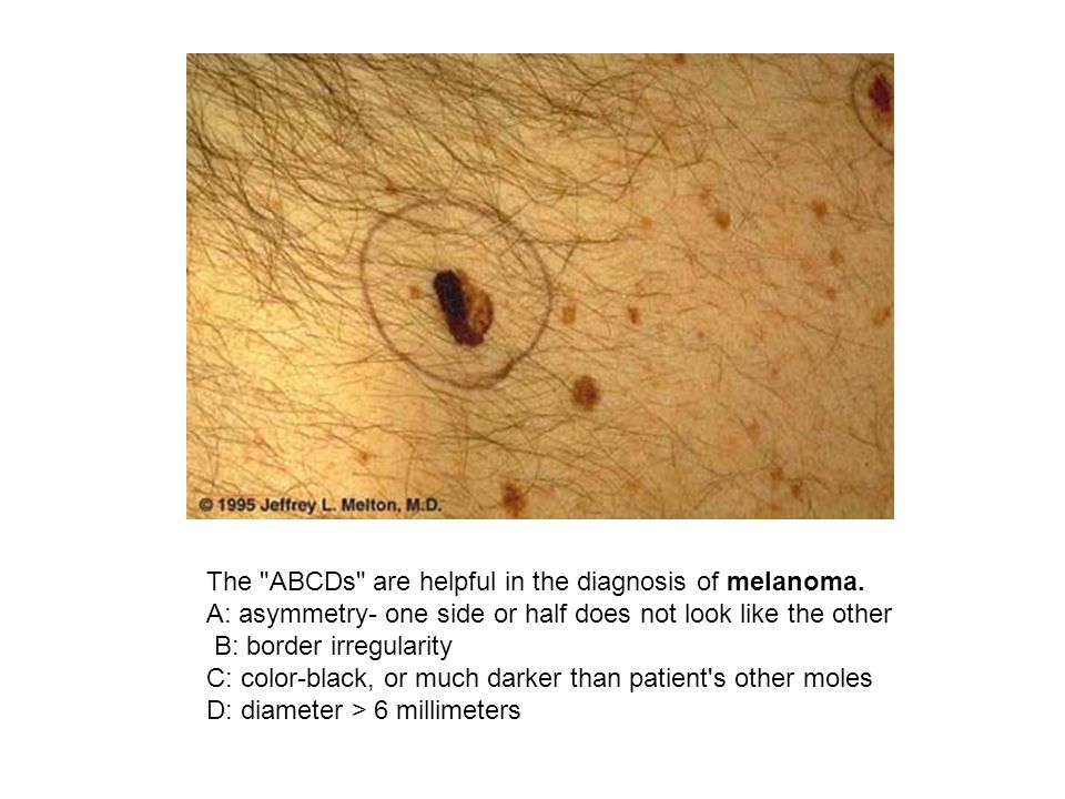 The ABCDs are helpful in the diagnosis of melanoma.