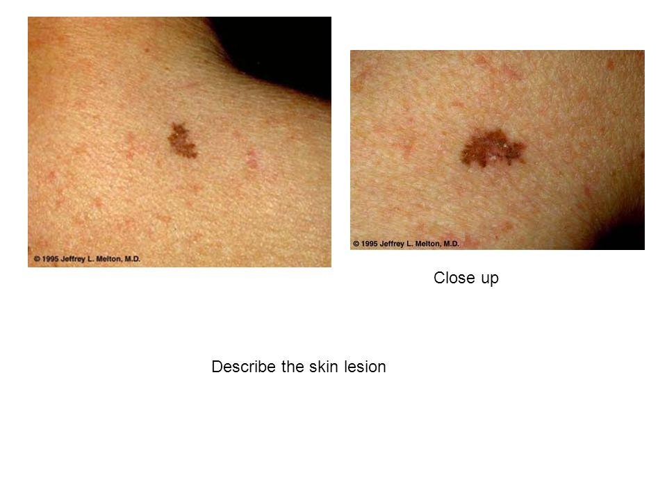 Close up Describe the skin lesion