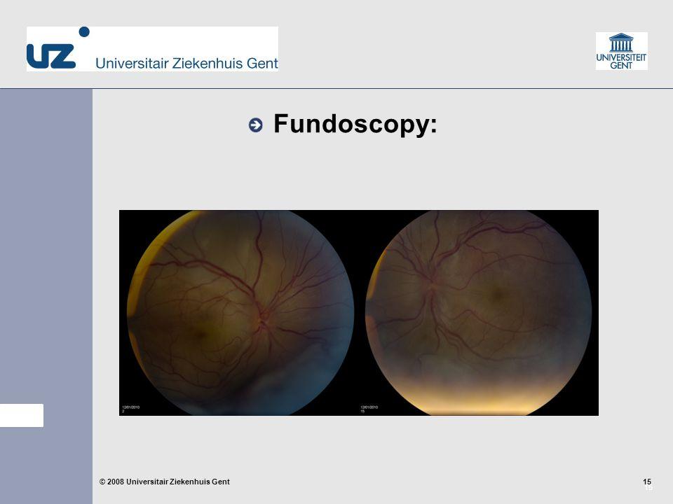 15 © 2008 Universitair Ziekenhuis Gent Fundoscopy: