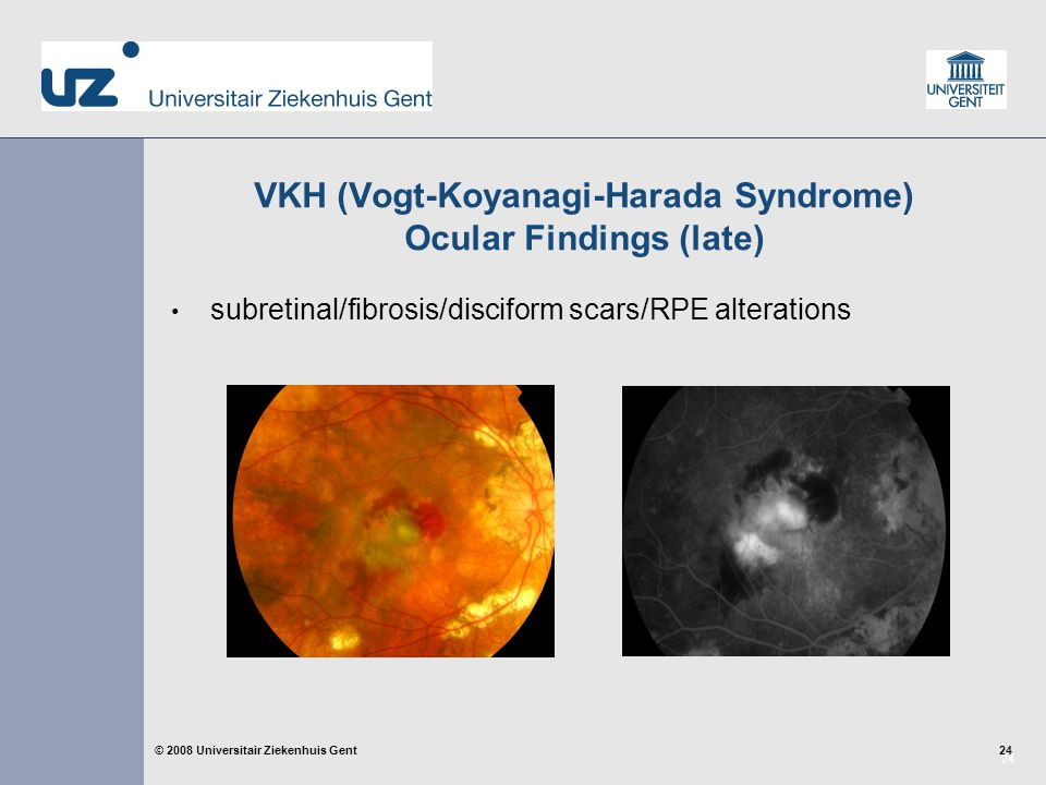 24 © 2008 Universitair Ziekenhuis Gent VKH (Vogt-Koyanagi-Harada Syndrome) Ocular Findings (late) subretinal/fibrosis/disciform scars/RPE alterations