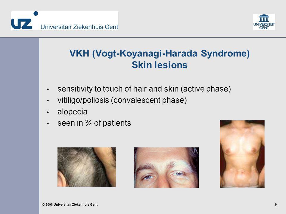 40 © 2008 Universitair Ziekenhuis Gent VKH Prognosis visual prognosis is generally favorable.