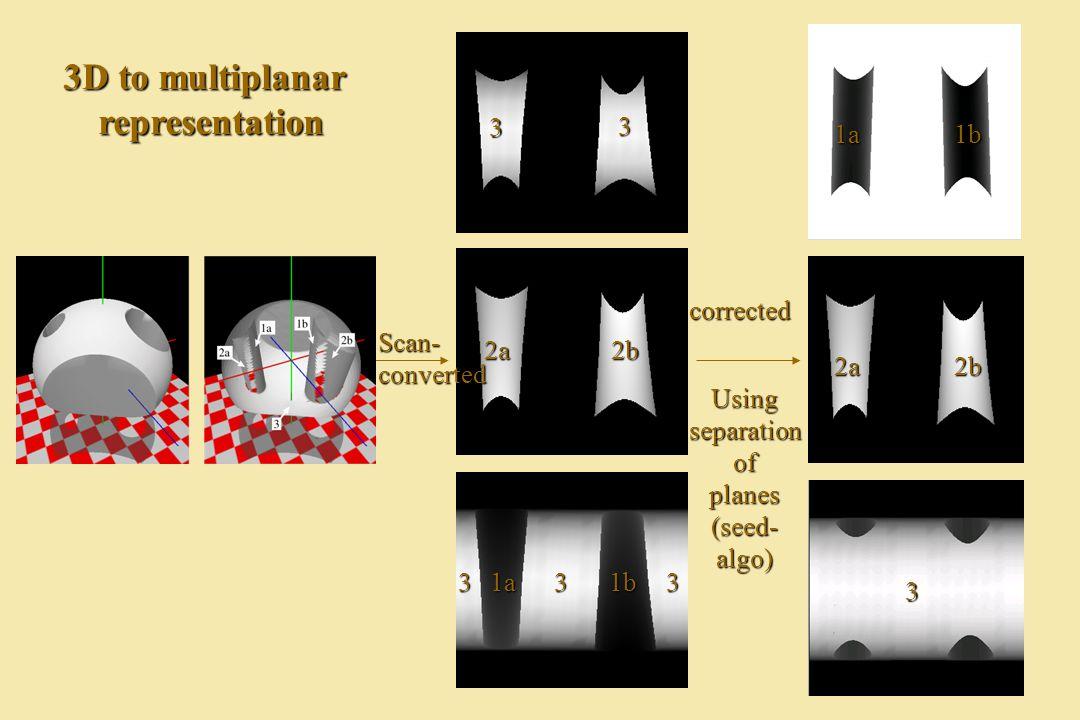 corrected Scan-converted 3D to multiplanar representation Usingseparationofplanes(seed-algo) 333 3 3 2a2b 1a1b 3 1a1b 2a2b