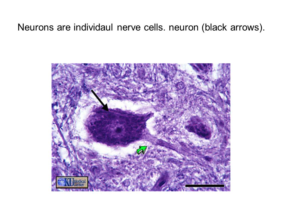 Type of neurons Unipolar: when they contain a single fiber, the axon, and no dendrites as seen in sensory ganglia.