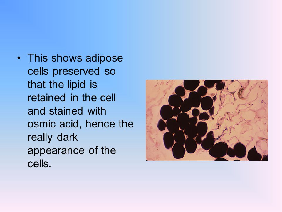 This shows adipose cells preserved so that the lipid is retained in the cell and stained with osmic acid, hence the really dark appearance of the cell