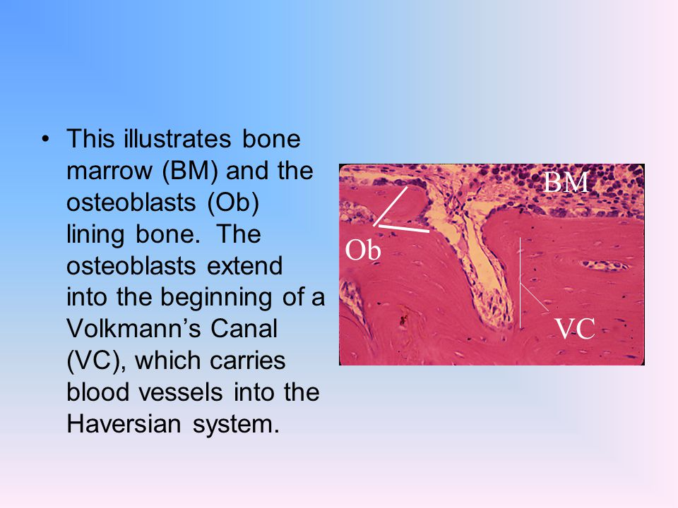 This illustrates bone marrow (BM) and the osteoblasts (Ob) lining bone. The osteoblasts extend into the beginning of a Volkmann's Canal (VC), which ca