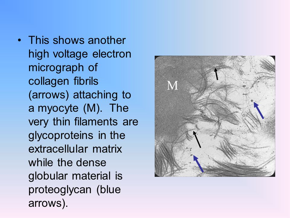 This shows another high voltage electron micrograph of collagen fibrils (arrows) attaching to a myocyte (M). The very thin filaments are glycoproteins