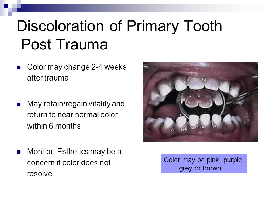 Discoloration of Primary Tooth Post Trauma Color may change 2-4 weeks after trauma May retain/regain vitality and return to near normal color within 6 months Monitor.