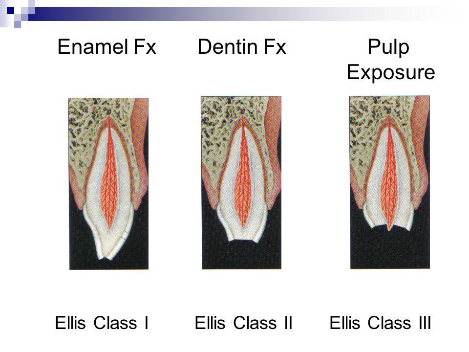 Enamel Fx Dentin Fx Pulp Exposure Ellis Class I Ellis Class II Ellis Class III