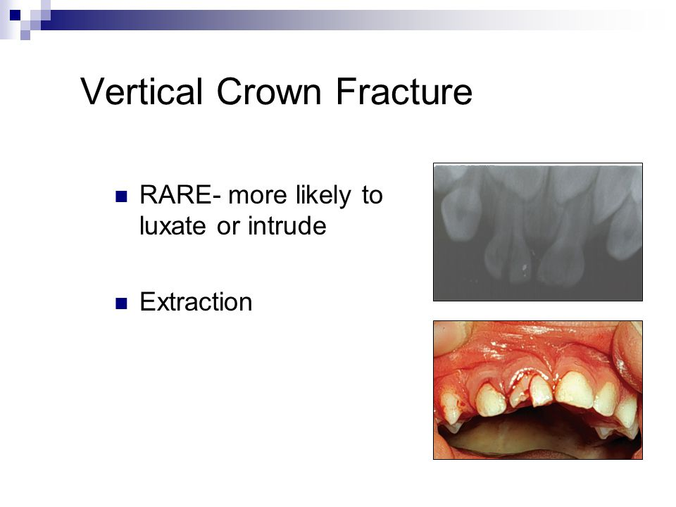 Vertical Crown Fracture RARE- more likely to luxate or intrude Extraction