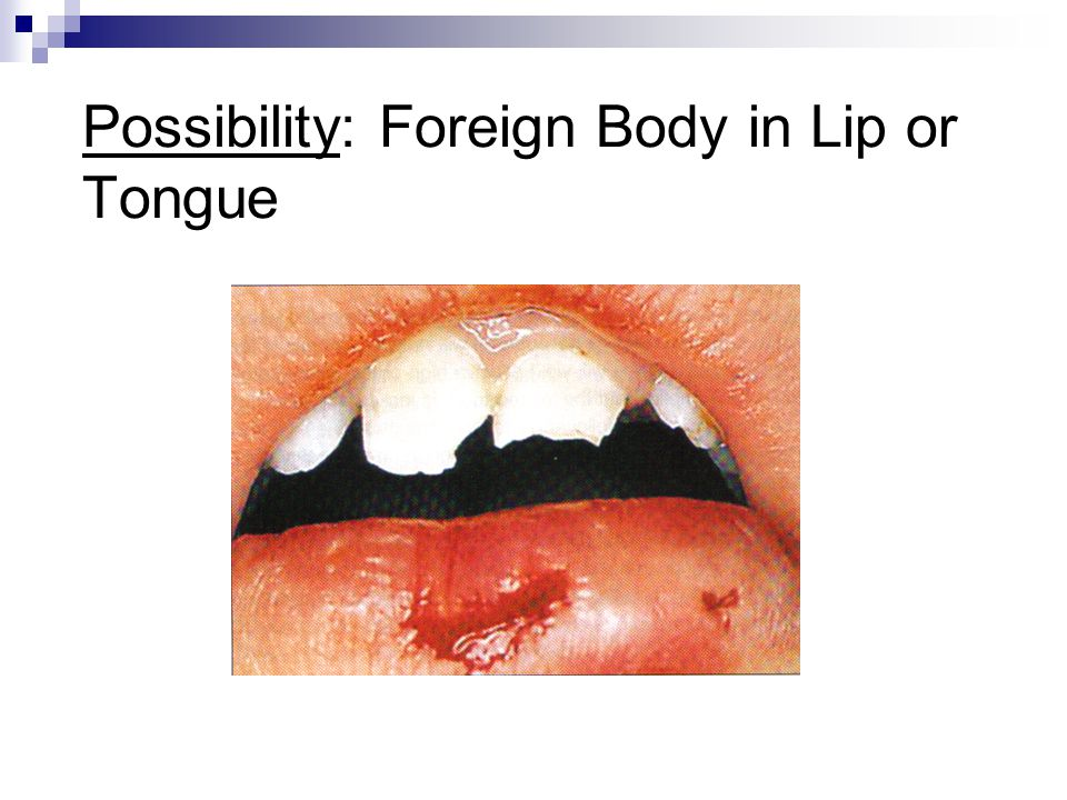 Possibility: Foreign Body in Lip or Tongue