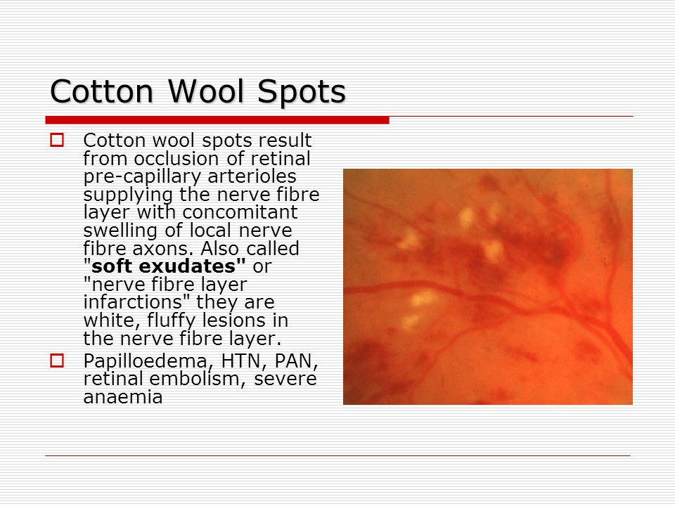 Hard exudates Hard exudates  Hard exudates ( Intra- retinal lipid exudates ) are yellow deposits of lipid and protein within the retina.