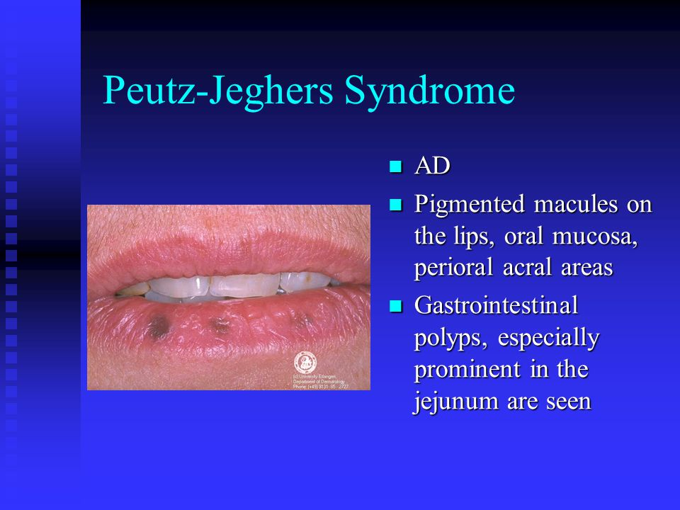 Peutz-Jeghers Syndrome AD Pigmented macules on the lips, oral mucosa, perioral acral areas Gastrointestinal polyps, especially prominent in the jejunum are seen