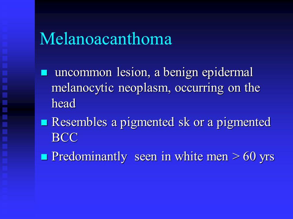 Melanoacanthoma uncommon lesion, a benign epidermal melanocytic neoplasm, occurring on the head uncommon lesion, a benign epidermal melanocytic neoplasm, occurring on the head Resembles a pigmented sk or a pigmented BCC Resembles a pigmented sk or a pigmented BCC Predominantly seen in white men > 60 yrs Predominantly seen in white men > 60 yrs