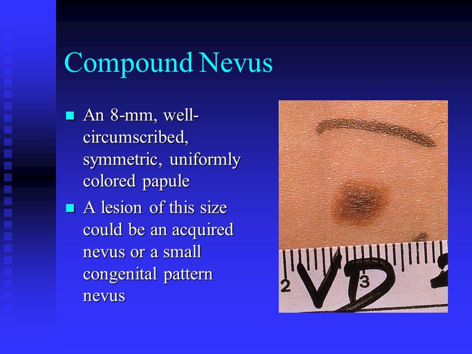 Compound Nevus An 8-mm, well- circumscribed, symmetric, uniformly colored papule An 8-mm, well- circumscribed, symmetric, uniformly colored papule A l