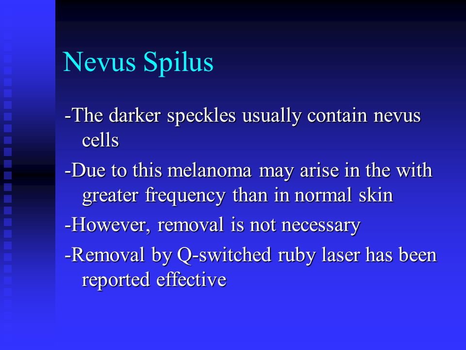 Nevus Spilus -The darker speckles usually contain nevus cells -Due to this melanoma may arise in the with greater frequency than in normal skin -Howev