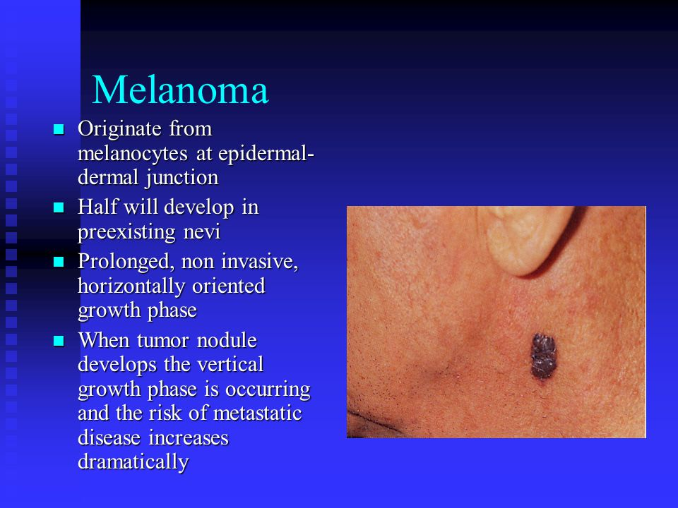 Melanoma Originate from melanocytes at epidermal- dermal junction Originate from melanocytes at epidermal- dermal junction Half will develop in preexisting nevi Half will develop in preexisting nevi Prolonged, non invasive, horizontally oriented growth phase Prolonged, non invasive, horizontally oriented growth phase When tumor nodule develops the vertical growth phase is occurring and the risk of metastatic disease increases dramatically When tumor nodule develops the vertical growth phase is occurring and the risk of metastatic disease increases dramatically