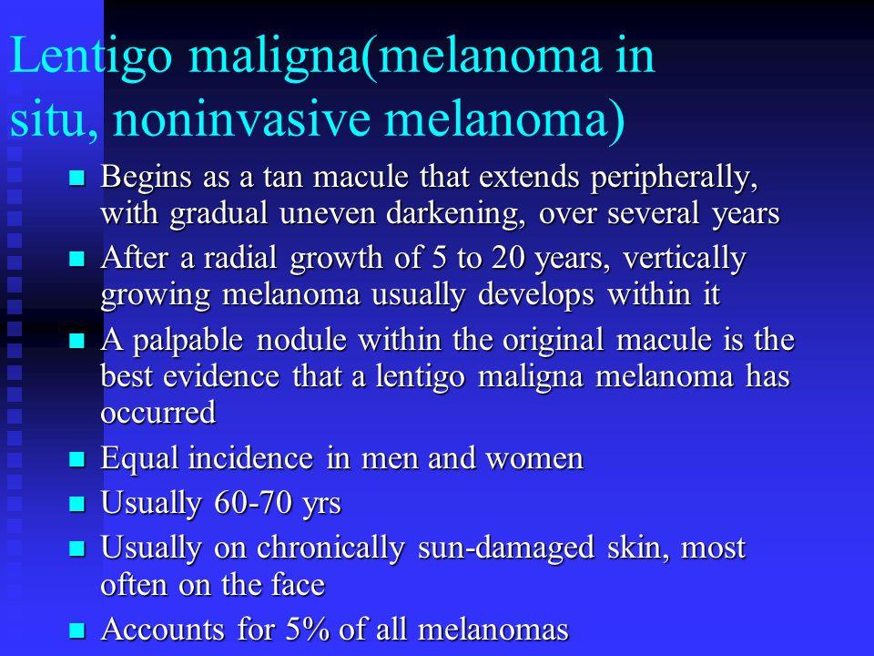 Lentigo maligna(melanoma in situ, noninvasive melanoma) Begins as a tan macule that extends peripherally, with gradual uneven darkening, over several