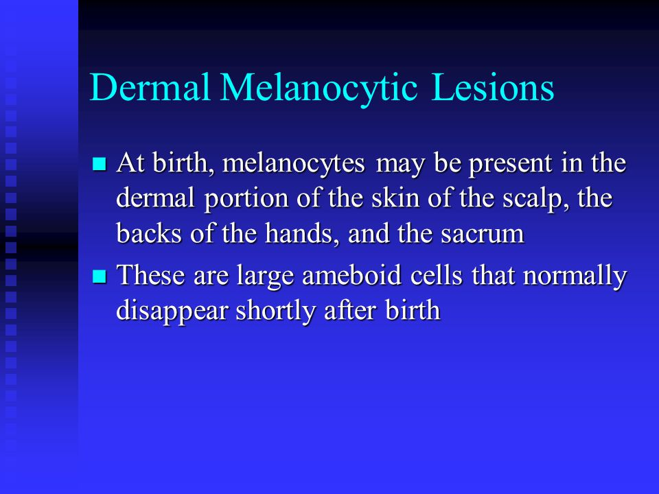 Dermal Melanocytic Lesions At birth, melanocytes may be present in the dermal portion of the skin of the scalp, the backs of the hands, and the sacrum At birth, melanocytes may be present in the dermal portion of the skin of the scalp, the backs of the hands, and the sacrum These are large ameboid cells that normally disappear shortly after birth These are large ameboid cells that normally disappear shortly after birth