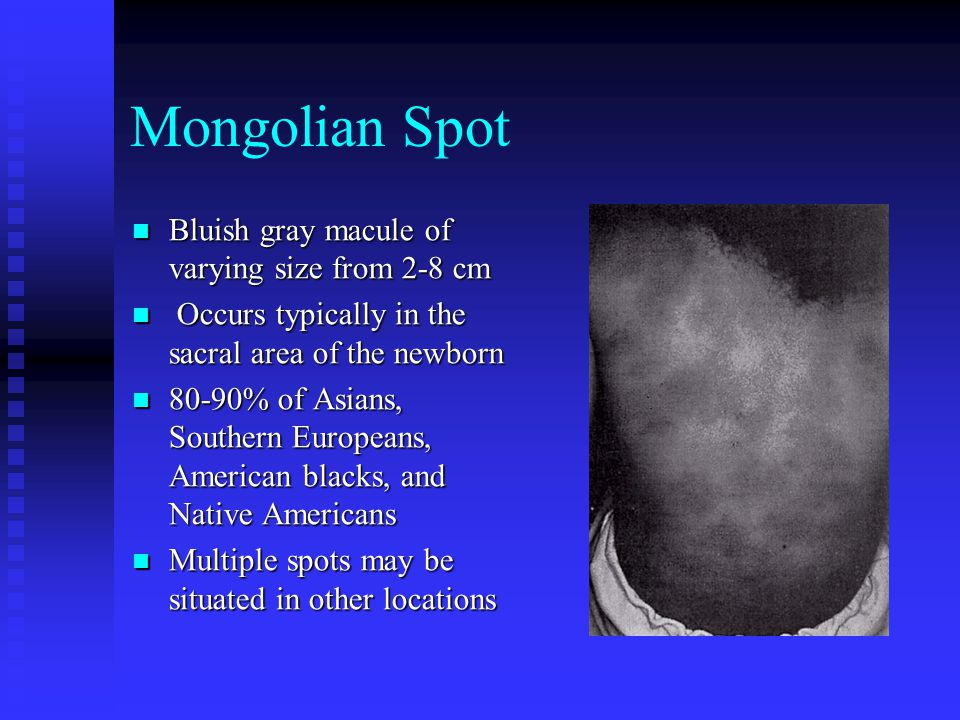 Mongolian Spot Bluish gray macule of varying size from 2-8 cm Bluish gray macule of varying size from 2-8 cm Occurs typically in the sacral area of th