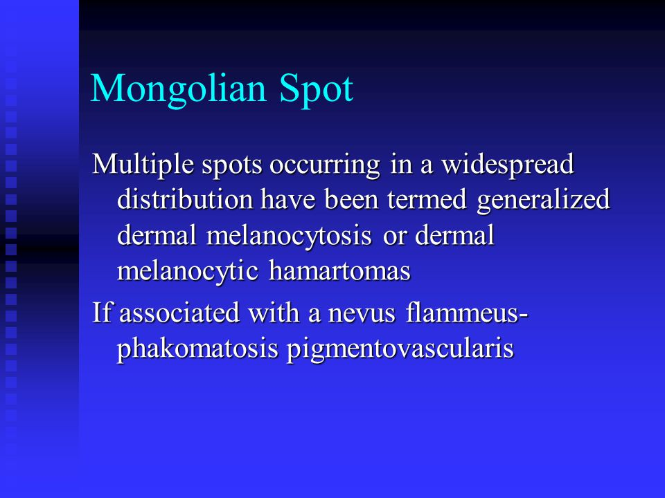 Mongolian Spot Multiple spots occurring in a widespread distribution have been termed generalized dermal melanocytosis or dermal melanocytic hamartoma
