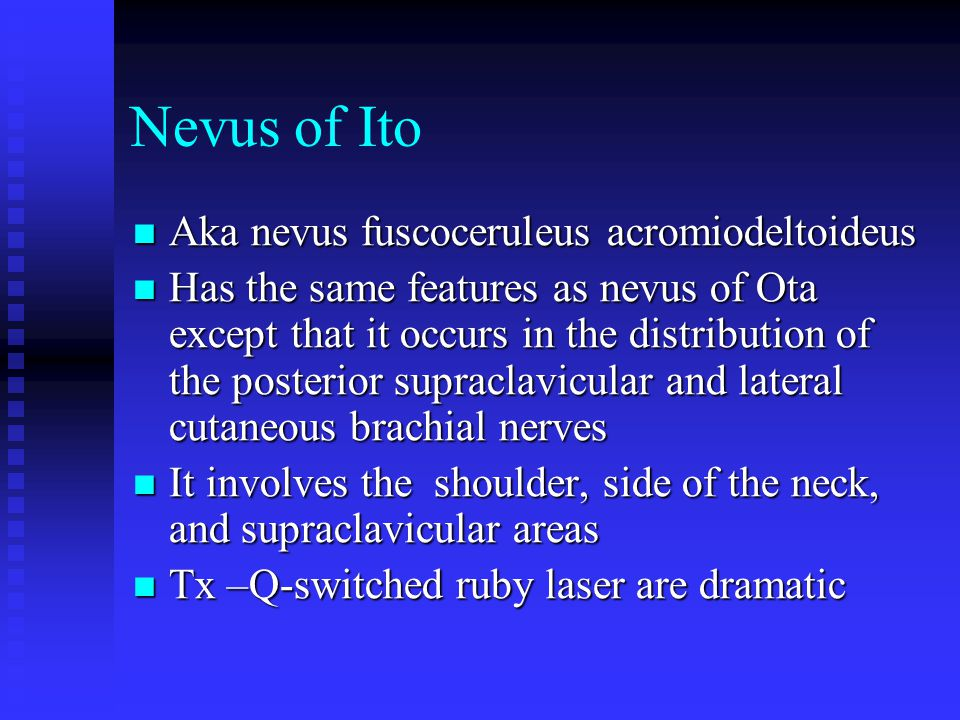 Nevus of Ito Aka nevus fuscoceruleus acromiodeltoideus Aka nevus fuscoceruleus acromiodeltoideus Has the same features as nevus of Ota except that it