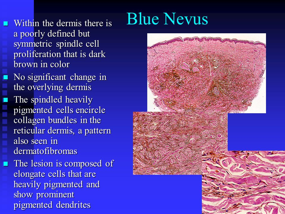Blue Nevus Within the dermis there is a poorly defined but symmetric spindle cell proliferation that is dark brown in color Within the dermis there is a poorly defined but symmetric spindle cell proliferation that is dark brown in color No significant change in the overlying dermis No significant change in the overlying dermis The spindled heavily pigmented cells encircle collagen bundles in the reticular dermis, a pattern also seen in dermatofibromas The spindled heavily pigmented cells encircle collagen bundles in the reticular dermis, a pattern also seen in dermatofibromas The lesion is composed of elongate cells that are heavily pigmented and show prominent pigmented dendrites The lesion is composed of elongate cells that are heavily pigmented and show prominent pigmented dendrites