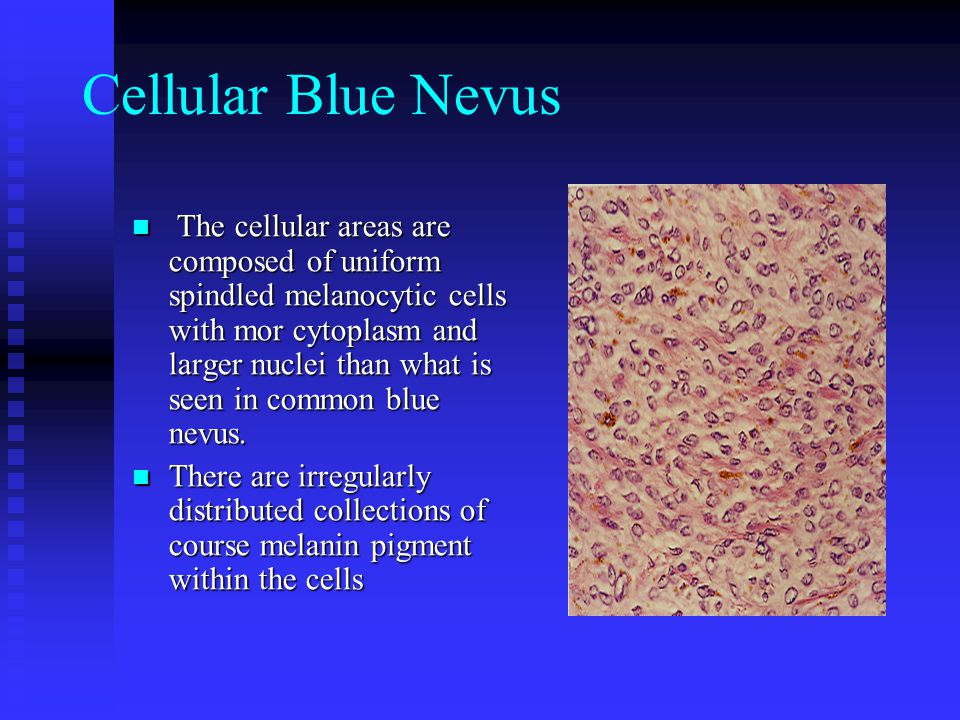Cellular Blue Nevus The cellular areas are composed of uniform spindled melanocytic cells with mor cytoplasm and larger nuclei than what is seen in co