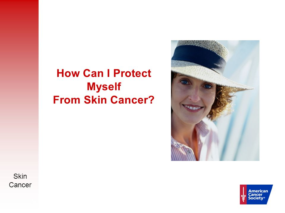 Skin Cancer 13 How Can I Protect Myself From Skin Cancer?