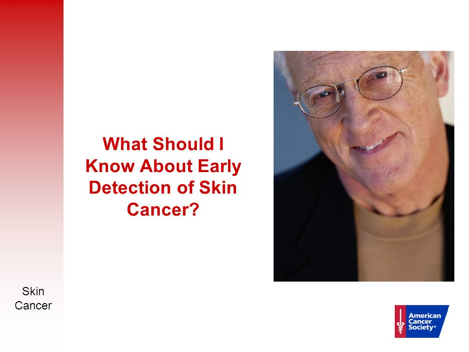 Skin Cancer 16 What Should I Know About Early Detection of Skin Cancer?