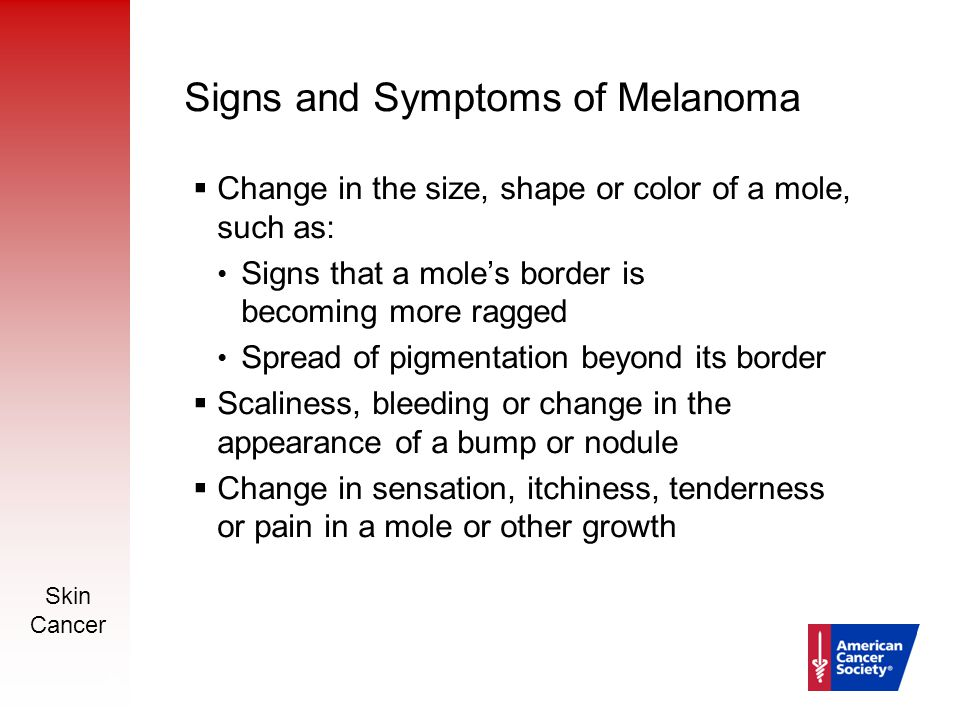 Skin Cancer 20 Signs and Symptoms of Melanoma  Change in the size, shape or color of a mole, such as: Signs that a mole's border is becoming more rag