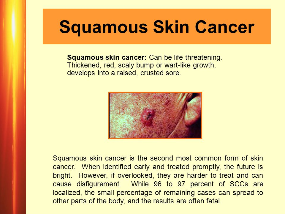 Squamous Skin Cancer Squamous skin cancer: Can be life-threatening.