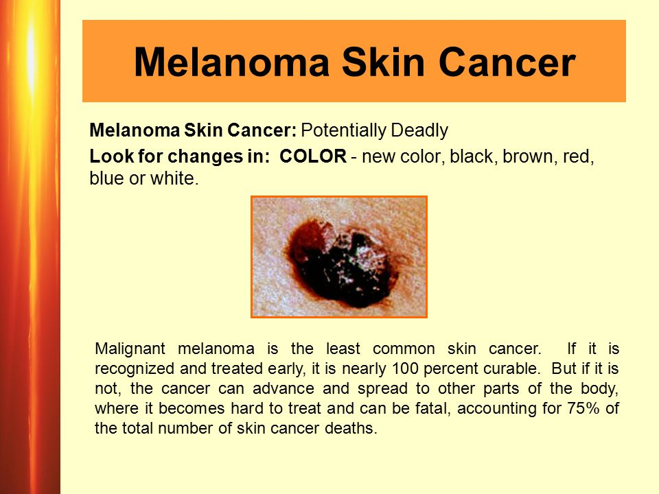 Melanoma Skin Cancer Melanoma Skin Cancer: Potentially Deadly Look for changes in: COLOR - new color, black, brown, red, blue or white.