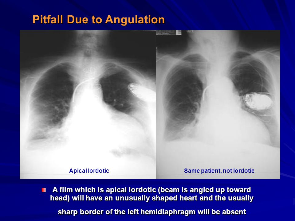 Pitfall Due to Angulation A film which is apical lordotic (beam is angled up toward head) will have an unusually shaped heart and the usually sharp bo