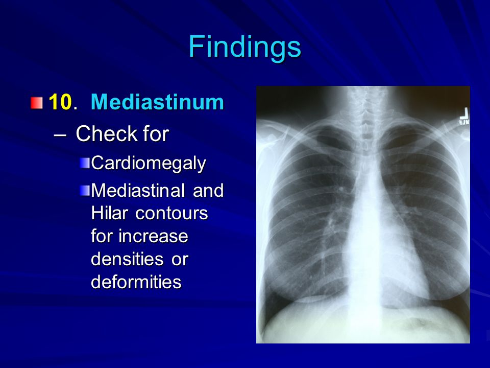 Findings 10. Mediastinum – Check for Cardiomegaly Mediastinal and Hilar contours for increase densities or deformities