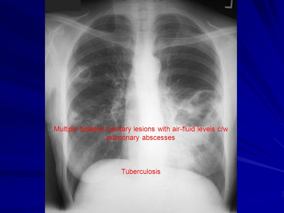 Multiple bilateral cavitary lesions with air-fluid levels c/w pulmonary abscesses Tuberculosis