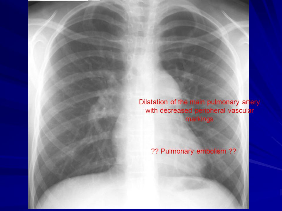 Dilatation of the main pulmonary artery with decreased peripheral vascular markings ?? Pulmonary embolism ??